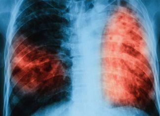 Tuberculosis multirresistente: una amenaza mortal creciente
