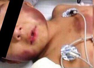 A golpes le rompió los intestinos a un niño de 3 años
