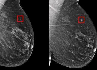 Crean modelo para predecir el cáncer de mama antes de que se presente