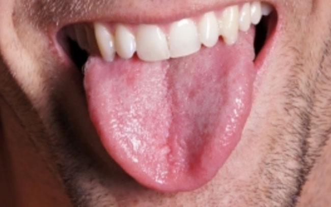 Perder grasa en la lengua puede ayudar con la apnea del sueño