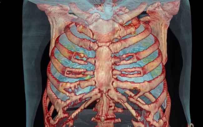 Difunden video de los efectos que tiene la COVID-19 en unos pulmones sanos