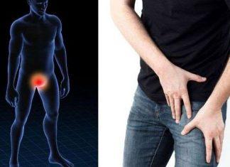7 de cada 10 varones son diagnosticados con cáncer de próstata avanzado